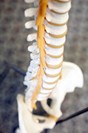 Image of dry spine